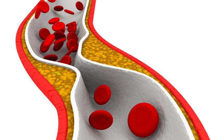 การเลือกอาหารที่ดีต่อผู้มีปัญหาภาวะไขมันในเลือดสูง